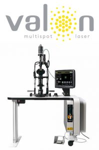 Valon TT 577nm Multispot Laser