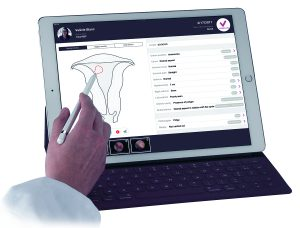 Delmont Imaging Imagyn app – diagnostic hysteroscopy